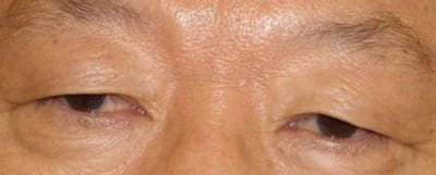 Asian Eyelid Surgery Before & After Gallery | Dr  John Lee